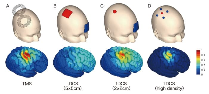 図2 運動皮質直上での経頭蓋脳刺激により大脳皮質で生じる電界のシミュレーション