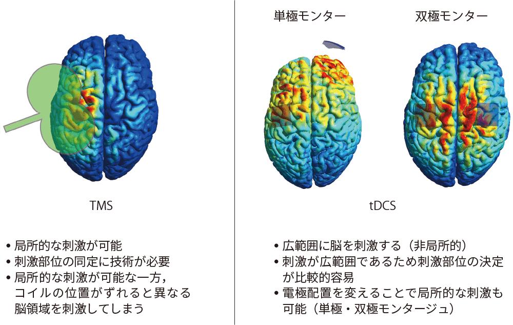 図2 TMSとtDCSの違いについて